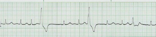 manual_cardiologia_pautas/extrasistole_ventricular_extrasistoles_ventriculares_2