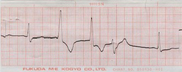 manual_cardiologia_pautas/extrasistole_ventricular_extrasistoles_ventriculares_5