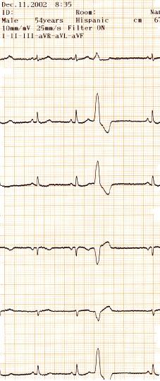 manual_cardiologia_pautas/extrasistole_ventricular_extrasistoles_ventriculares_6