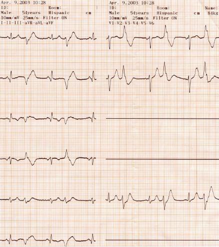 manual_cardiologia_pautas/extrasistole_ventricular_extrasistoles_ventriculares_7