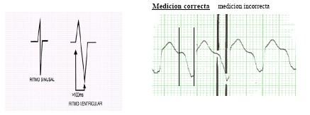 manual_cardiologia_pautas/taquicardia_ventricular_1