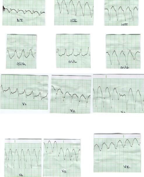 manual_cardiologia_pautas/taquicardia_ventricular_2