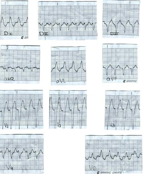 manual_cardiologia_pautas/taquicardia_ventricular_3