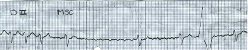 manual_cardiologia_pautas/taquicardia_ventricular_4