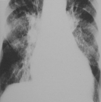 miocardiopatia_dilatada_radiacion/insuficiencia_cardiaca_radiografia