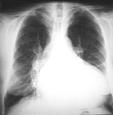 external image miocardiopatia_dilatada_radiografia.jpg