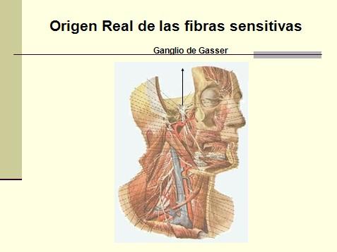 nervio_trigemino_neuralgia/nervio_trigemino_neuralgia_trigeminal_4