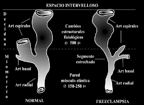 preeclamsia/espacio_intervelloso_preeclampsia