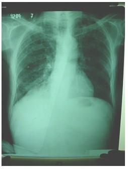 tuberculosis_extrapulmonar/radiografia_tuberculosis_laringea
