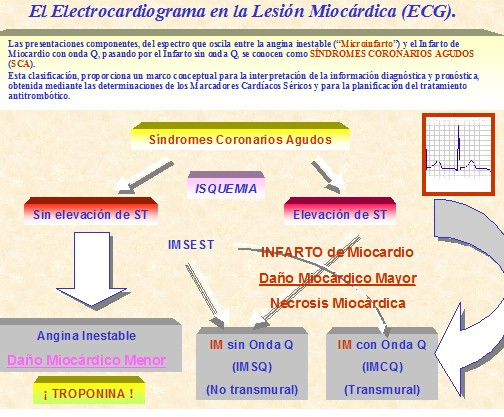 marcadores_cardiacos_isquemia/ecg_electrocardiograma_lesion_miocardica