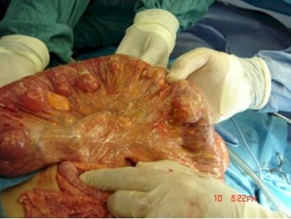 caso_clinico_peritonitis_diverticulosis/hallazgos_cirugia_diverticulosis_diverticulitis