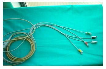 manejo_paciente_quirofano/colocacion_electrodos_ECG_EKG_electrocardiograma