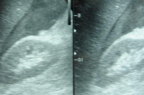 rotura_espontanea_bazo/hematoma_subcapsular_hemoperitoneo