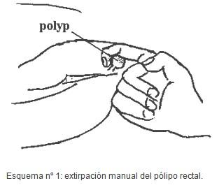 tecnica_extirpacion_polipo_rectal/polipectomia_rectal_digital