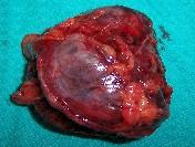 Zollinger_Ellison_tumor