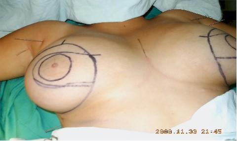 Cirugia plastica en Los Angeles Cirugia estetica