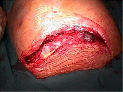 aneurisma_cayado_aortico_toracotomia
