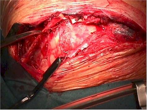 aneurisma_cayado_aortico_toracotomia2