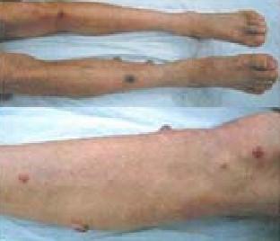 bartonellosis_lesion_tumoral