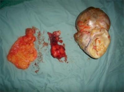 tumores_ovario3