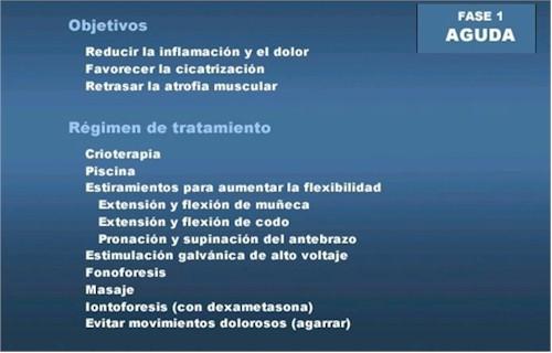 epicondilitis_protocolo_rehabilitacion