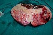 fibromatosis_mesenterica5