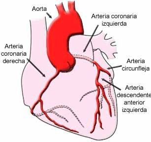 iam_arterias_coronarias