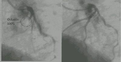 iam_arteriografia_coronaria2