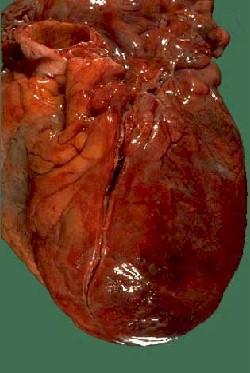 iam_corazon_infartado