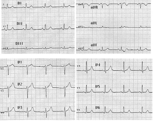 iam_electrocardiograma_normal