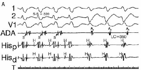 iam_fibrilacion_ventricular