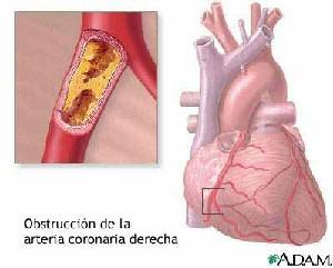 iam_obstruccion_arteria_coronaria