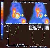 iam_ventriculografia_isotopica