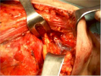 mastectomia_diseccion_axila