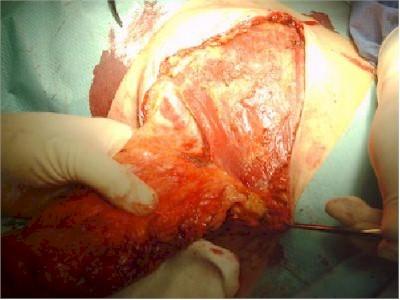 mastectomia_vaciamiento_axilar