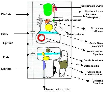 localizacion_radiologica