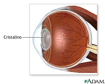 oftalmologia_cataratas