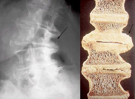 osteoartritis_columna