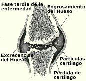 osteoartritis_fase_tardia