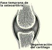 osteoartritis_fase_temprana