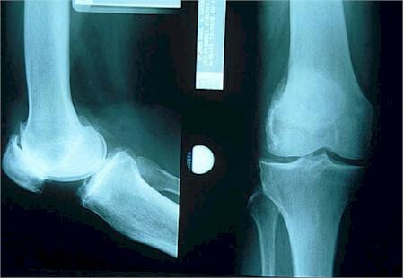 osteoartritis_rx2