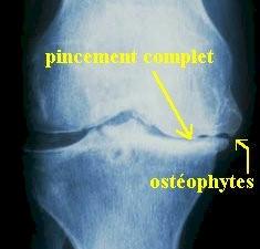 osteoartritis_rx3