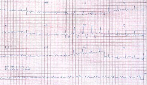 sindrome_coronario_agudo_ecg