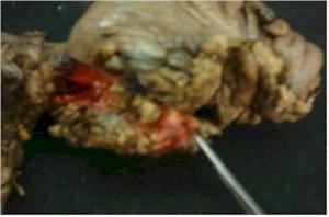 intususcepcion_colocolica_tumor_invaginado