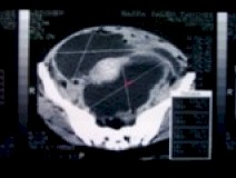 CT_scan1