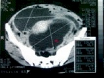CT_scan2